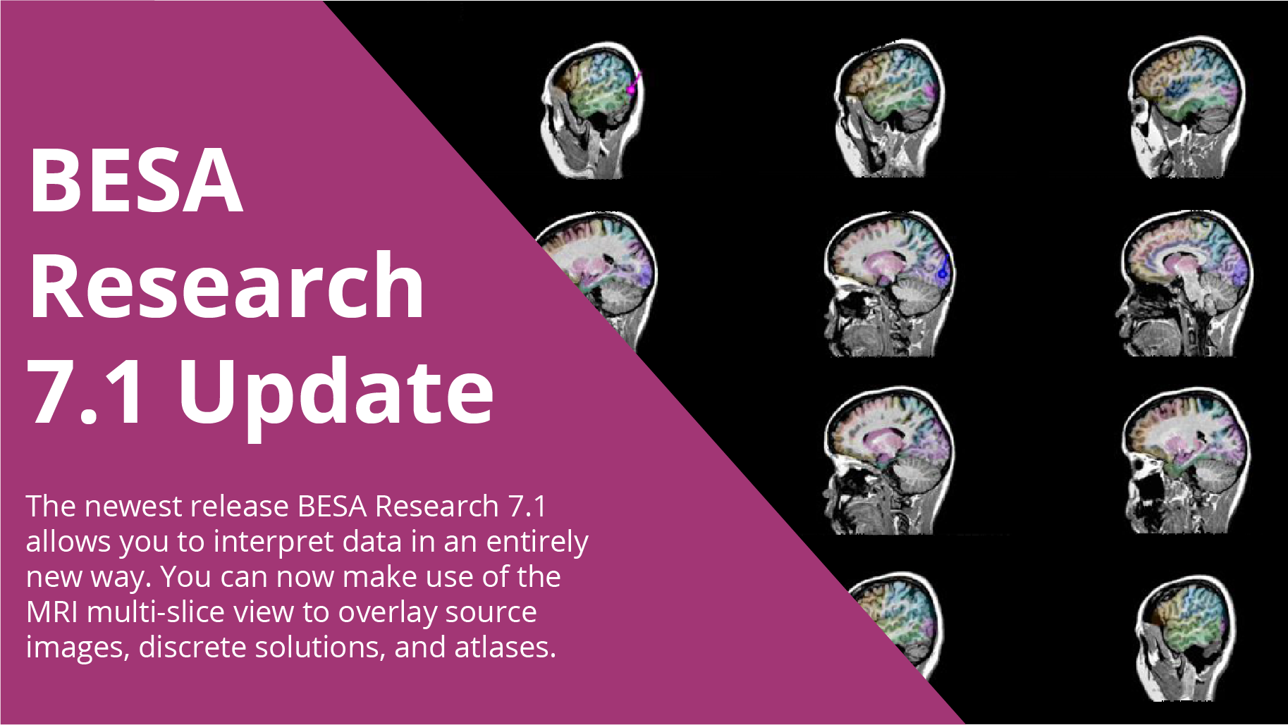 BESA Research 7.1 - Update